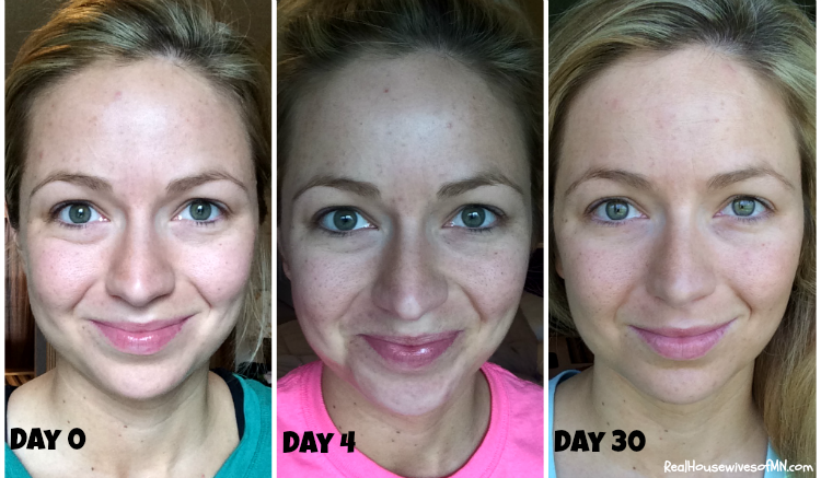 My Nerium Experience: Complete With Before & After Photos! - Real ...