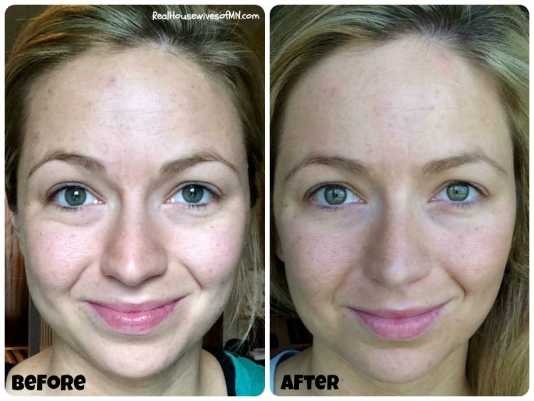 # Nerium face cream before and after pictures